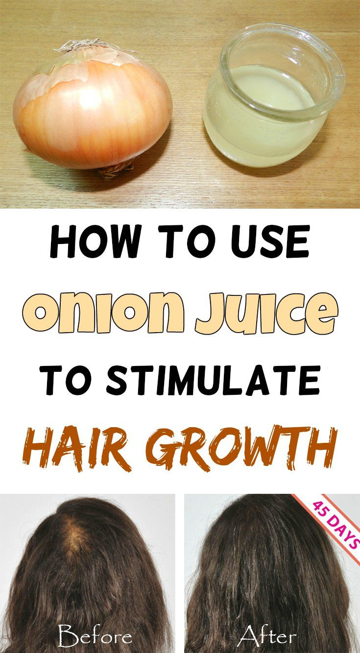 How To Speed Up The Hair Grow With Onion Juice